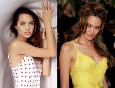 Пластические операции Анджелины Джоли