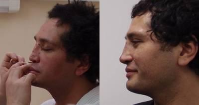 Рустам Солнцев до и после операции