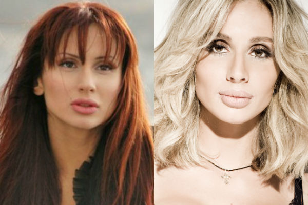 Светлана Лобода до и после пластики - фото
