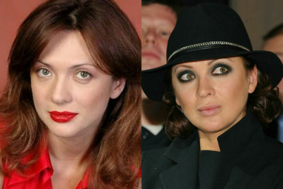 Ольга Дроздова до и после пластики — фото