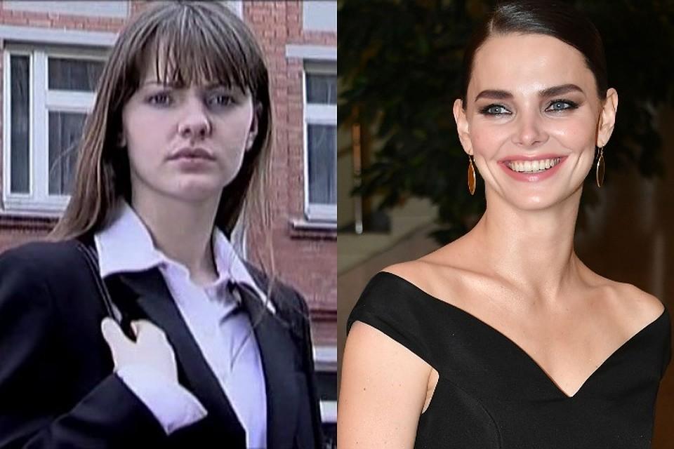 Елизавета Боярская до и после пластики – фото