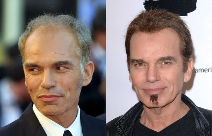 5 знаменитых людей, сделавших пересадку волос