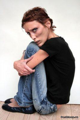 6 известных женщин погибших от анорексии