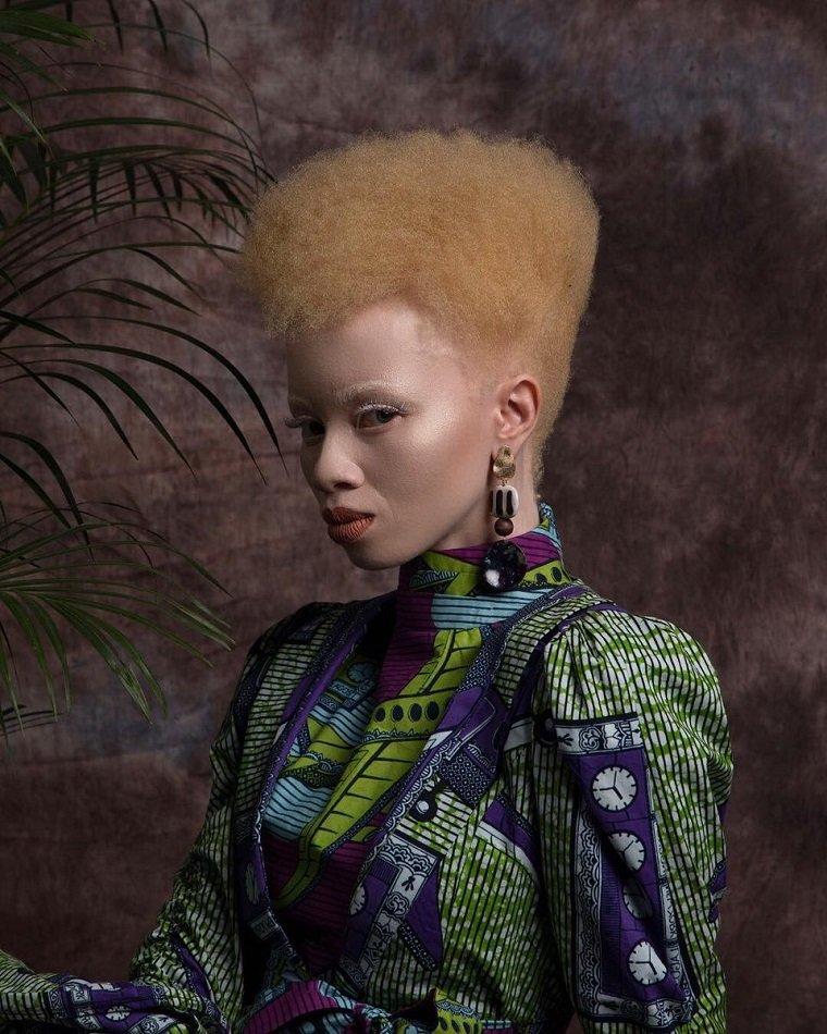 8 мировых моделей с необычной от природы внешностью