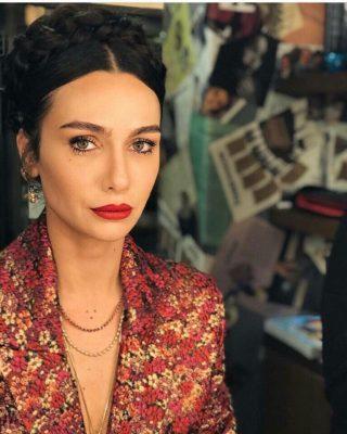 6 турецких актрис, сделавших пластику